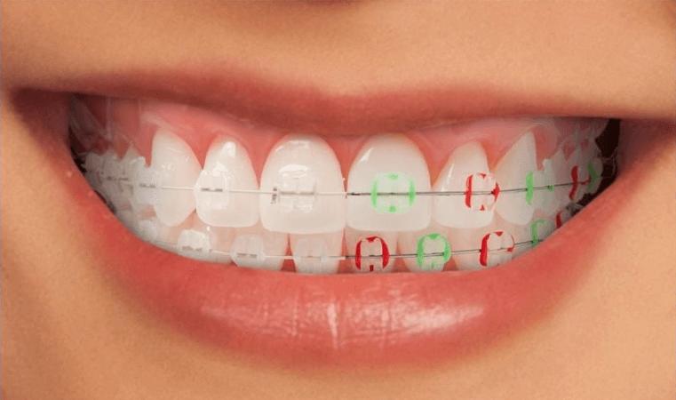 Obrazek posiada pusty atrybut alt; plik o nazwie Ile-kosztuje-aparat-ortodontycznySprawdź-aktualne-ceny-1.png