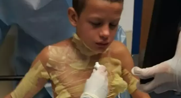 chłopiec poważnie poparzony