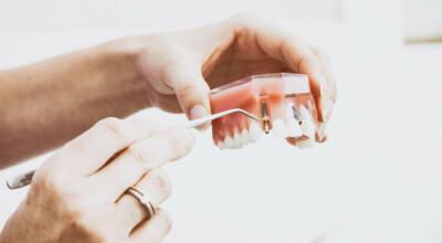 Bez specjalizacji ortodonty zakładał aparaty na zęby