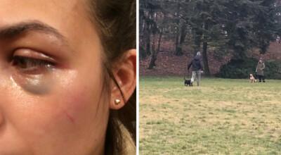 broniła swojego psa